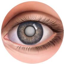 Определение катаракты - фото больного глаза