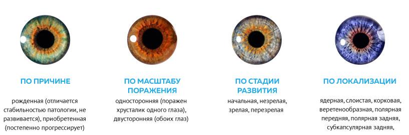 классификация катаракты